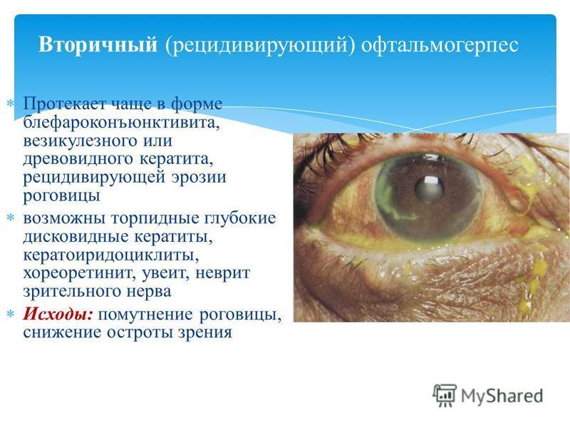 Вторичный (рецидивирующий) офтальмогерпес Протекает чаще в форме блефароконъюнктивита, везикулезного или древовидного кератита, рецидивирующей эрозии роговицы возможны торпидные глубокие дисковидные кератиты, кератоиридоциклиты, хориоретинит, увеит,