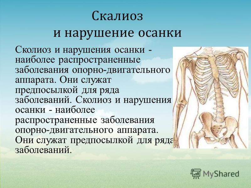 Скалиоз и нарушение осанки Сколиоз и нарушения осанки - наиболее распространенные заболевания опорно-двигательного аппарата. Они служат предпосылкой для ряда заболеваний.