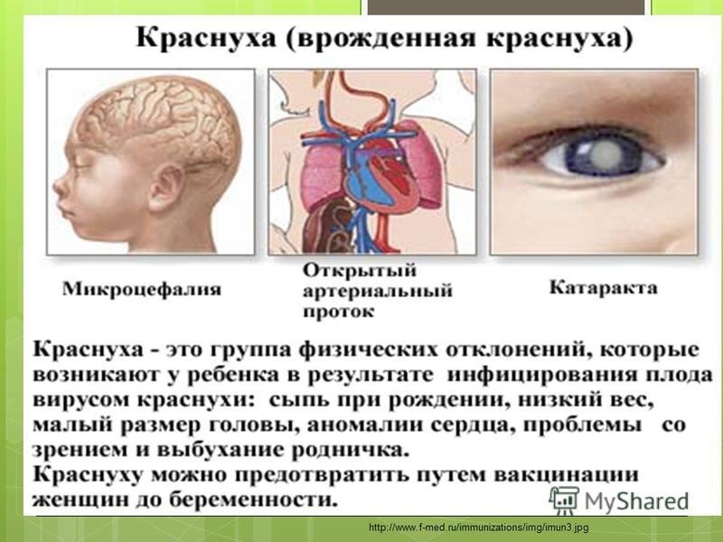 http://www.f-med.ru/immunizations/img/imun3.jpg