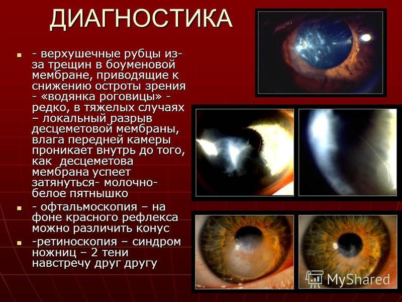 ДИАГНОСТИКА - верхушечные рубцы из- за трещин в боуменовой мембране, приводящие к снижению остроты зрения - «водянка роговицы» - редко, в тяжелых случаях – локальный разрыв десцеметовой мембраны, влага передней камеры проникает внутрь до того, как де