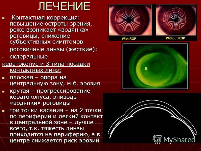 ЛЕЧЕНИЕ Контактная коррекция: повышение остроты зрения, реже возникает «водянка» роговицы, снижение субъективных симптомов Контактная коррекция: повышение остроты зрения, реже возникает «водянка» роговицы, снижение субъективных симптомов - роговичные