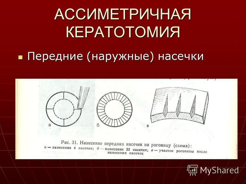 АССИМЕТРИЧНАЯ КЕРАТОТОМИЯ Передние (наружные) насечки Передние (наружные) насечки