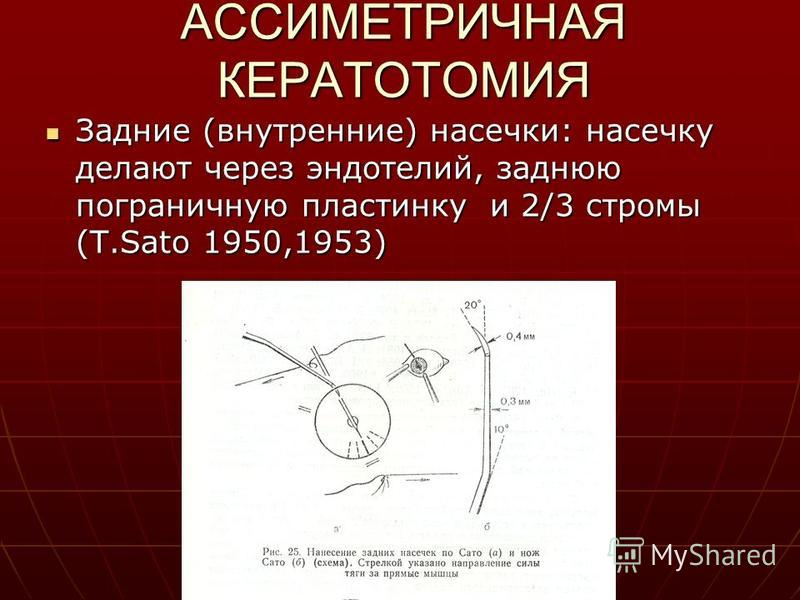 АССИМЕТРИЧНАЯ КЕРАТОТОМИЯ Задние (внутренние) насечки: насечку делают через эндотелий, заднюю пограничную пластинку и 2/3 стромы (T.Sato 1950,1953) Задние (внутренние) насечки: насечку делают через эндотелий, заднюю пограничную пластинку и 2/3 стромы