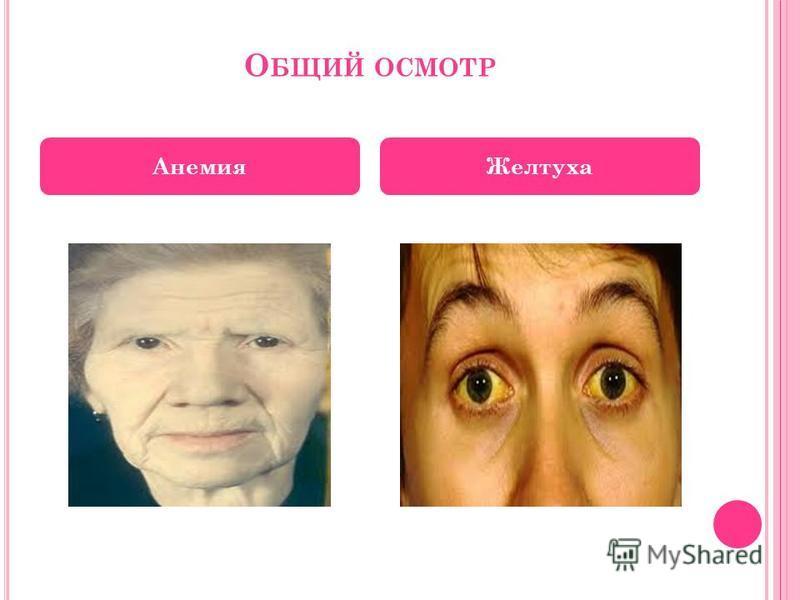 О БЩИЙ ОСМОТР Анемия Желтуха