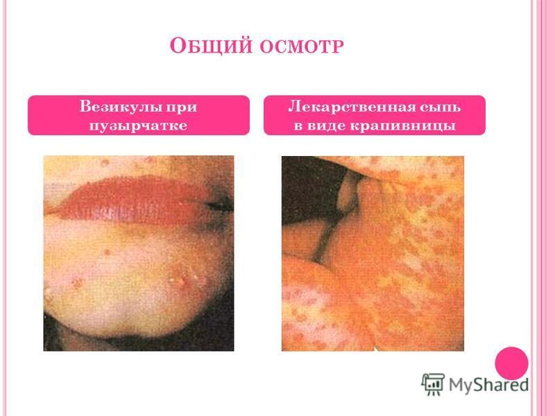 О БЩИЙ ОСМОТР Везикулы при пузырчатке Лекарственная сыпь в виде крапивницы