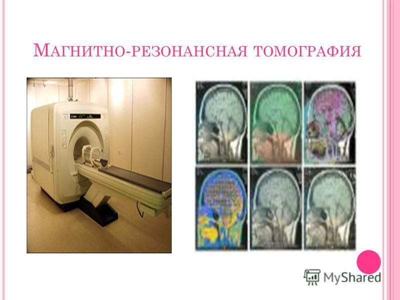 М АГНИТНО - РЕЗОНАНСНАЯ ТОМОГРАФИЯ