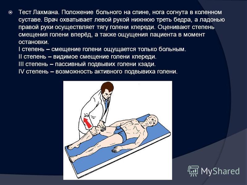 Тест Лахмана. Положение больного на спине, нога согнута в коленном суставе. Врач охватывает левой рукой нижнюю треть бедра, а ладонью правой руки осуществляет тягу голени кпереди. Оценивают степень смещения голени вперёд, а также ощущения пациента в