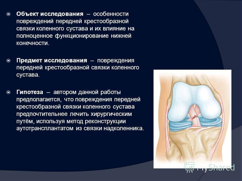 Объект исследования – особенности повреждений передней крестообразной связки коленного сустава и их влияние на полноценное функционирование нижней конечности. Предмет исследования – повреждения передней крестообразной связки коленного сустава. Гипоте