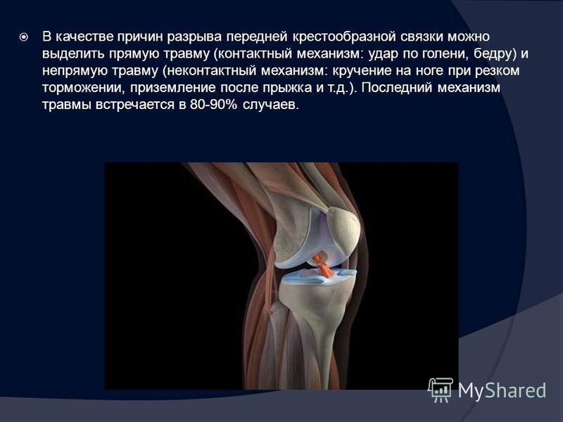 В качестве причин разрыва передней крестообразной связки можно выделить прямую травму (контактный механизм: удар по голени, бедру) и непрямую травму (неконтактный механизм: кручение на ноге при резком торможении, приземление после прыжка и т.д.). Пос