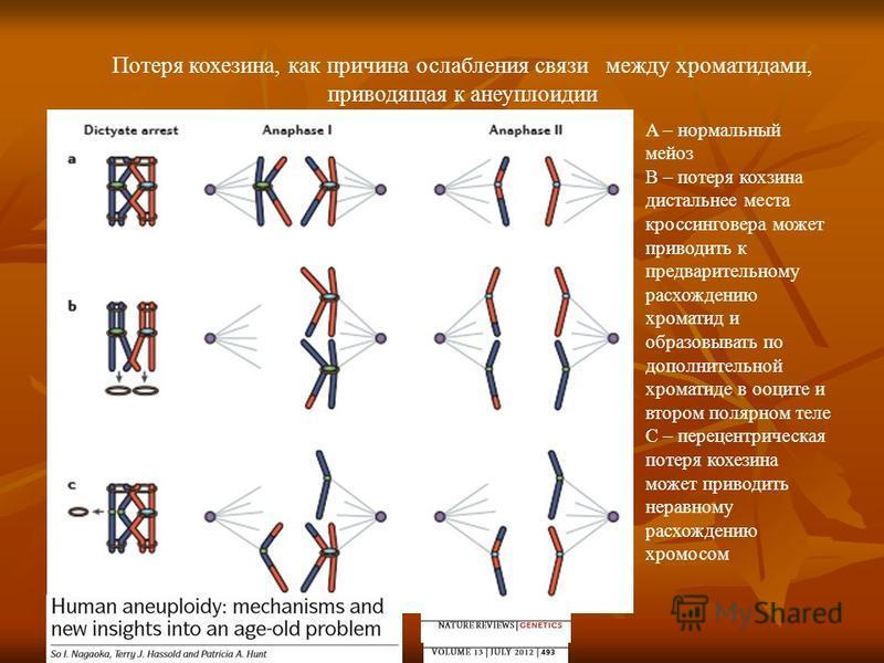 Потеря кохезина, как причина ослабления связи между хроматидами, приводящая к анеуплоидии A – нормальный мейоз B – потеря корзина дистальное места кроссинговера может приводить к предварительному расхождению хроматид и образовывать по дополнительной
