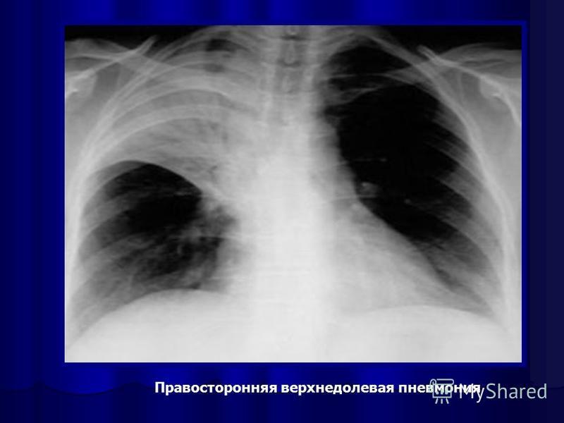 Правосторонняя верхнедолевая пневмония