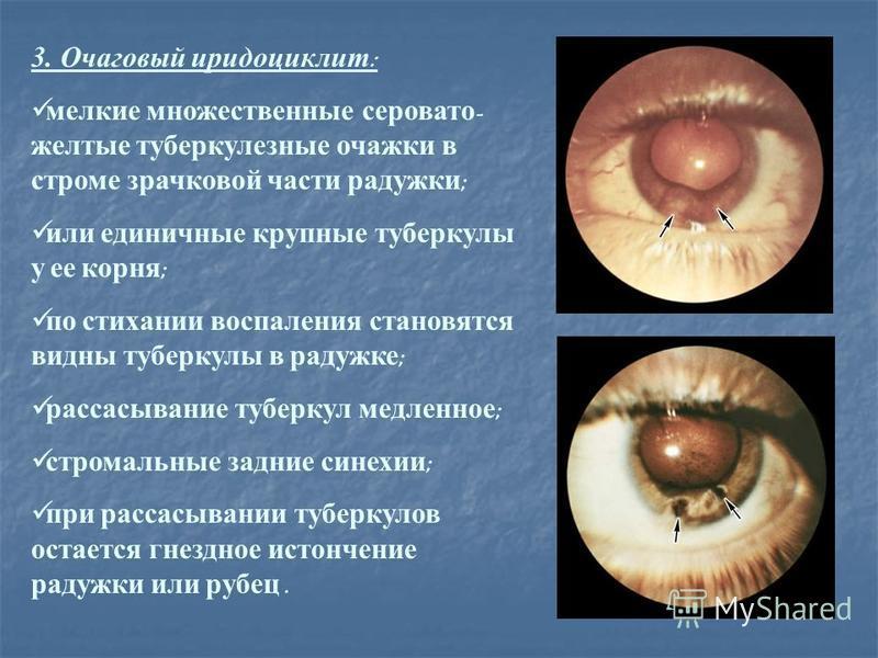 3. Очаговый иридоциклит : мелкие множественные серовато - желтые туберкулезные очажки в строме зрачковой части радужки ; или единичные крупные туберкулы у ее корня ; по стихании воспаления становятся видны туберкулы в радужке ; рассасывание туберкул