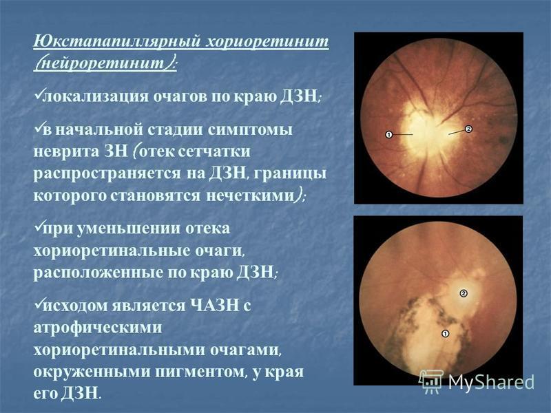 Юкстапапиллярный хориоретинит ( нейроретинит ): локализация очагов по краю ДЗН ; в начальной стадии симптомы неврита ЗН ( отек сетчатки распространяется на ДЗН, границы которого становятся нечеткими ); при уменьшении отека хориоретинальные очаги, рас