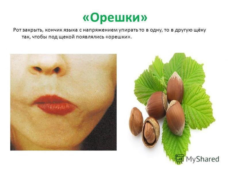 «Орешки» Рот закрыть, кончик языка с напряжением упирать то в одну, то в другую щёку так, чтобы под щекой появлялись «орешки».