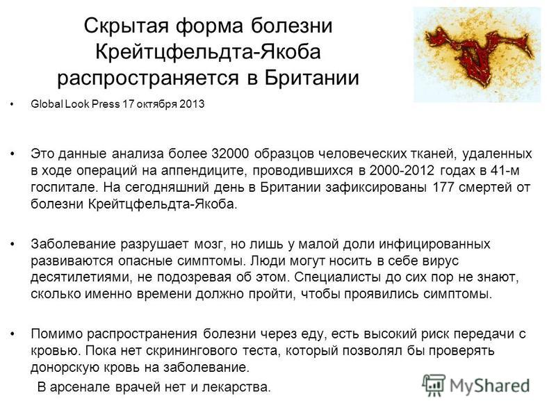 Скрытая форма болезни Крейтцфельдта-Якоба распространяется в Британии Global Look Press 17 октября 2013 Это данные анализа более 32000 образцов человеческих тканей, удаленных в ходе операций на аппендиците, проводившихся в 2000-2012 годах в 41-м госп