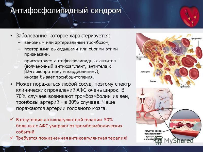 Антифосфолипидный синдром Заболевание которое характеризуется: – венозным или артериальным тромбозом, – повторными выкидышами или обоими этими признаками, – присутствием антифосфолипидных антител (волчаночный антикоагулянт, антитела к β2-гликопротеин