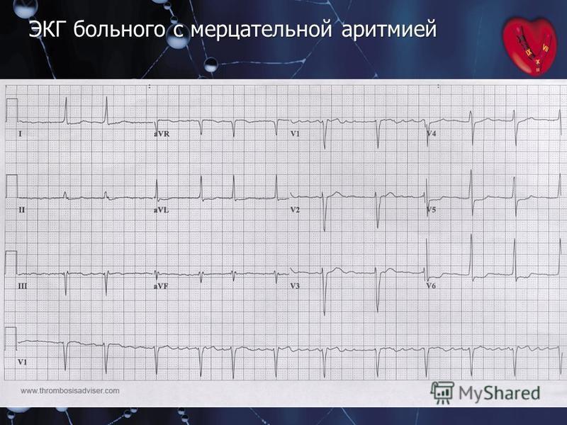 ЭКГ больного с мерцательной аритмией