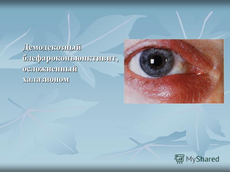 Демодекозный блефароконъюнктивит, осложненный халазионом Демодекозный блефароконъюнктивит, осложненный халазионом