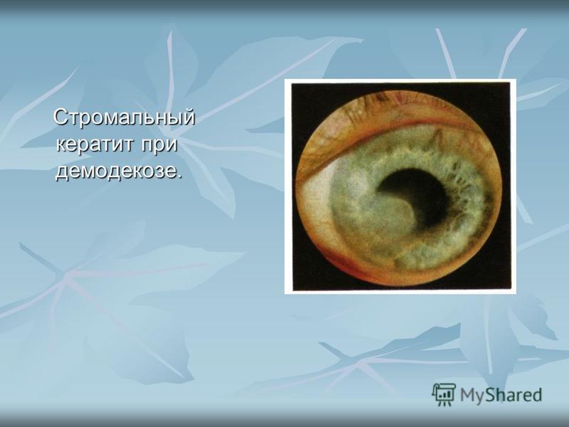 Стромальный кератит при демодекозе. Стромальный кератит при демодекозе.