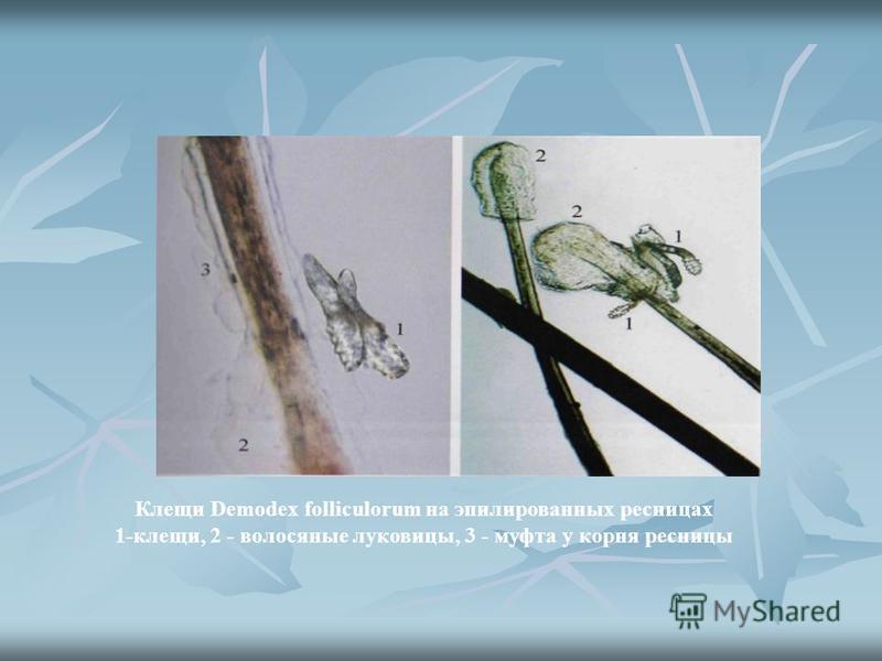 Клещи Demodex folliculorum на эпилированных ресницах 1-клещи, 2 - волосяные луковицы, 3 - муфта у корня ресницы