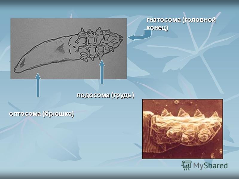 гнатосома (головной конец) оптосома (брюшко) подо сома (грудь)
