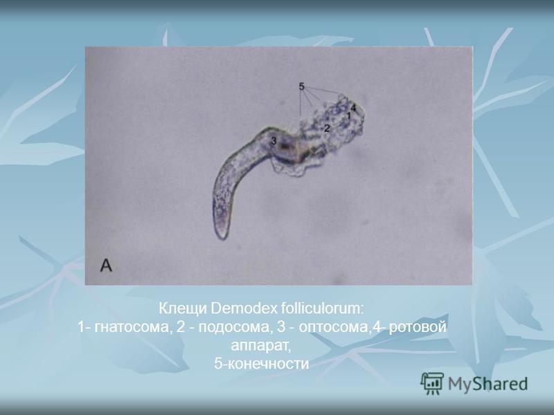Клещи Demodex folliculorum: 1- гнатосома, 2 - подо сома, 3 - оптосома,4- ротовой аппарат, 5-конечности