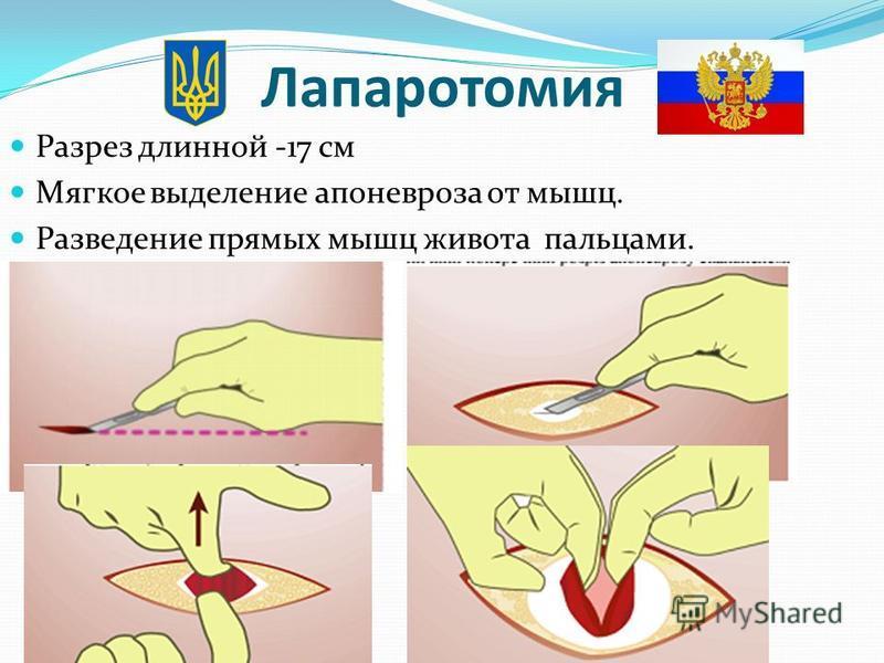 Лапаротомия Разрез длинной -17 см Мягкое выделение апоневроза от мышц. Разведение прямых мышц живота пальцами.