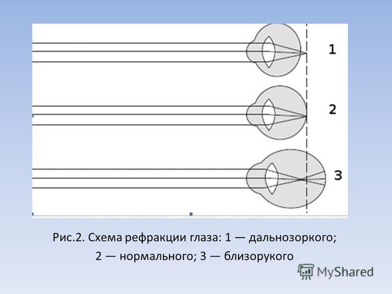 Рис.2. Схема рефракции глаза: 1 дальнозоркого; 2 нормального; 3 близорукого