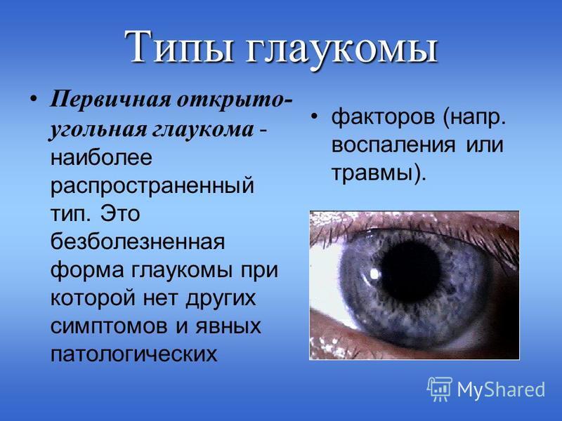 Типы глаукомы Первичная открыто- угольная глаукома - наиболее распространенный тип. Это безболезненная форма глаукомы при которой нет других симптомов и явных патологических факторов (напр. воспаления или травмы).