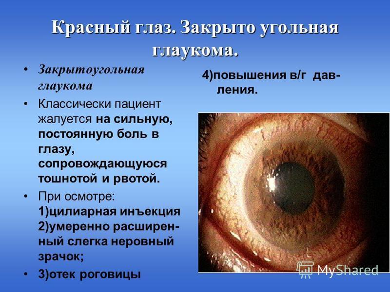 Красный глаз. Закрыто угольная глаукома. 4)повышения в/г давления. Закрытоугольная глаукома Классически пациент жалуется на сильную, постоянную боль в глазу, сопровождающуюся тошнотой и рвотой. При осмотре: 1)цилиарная инъекция 2)умеренно расширенный