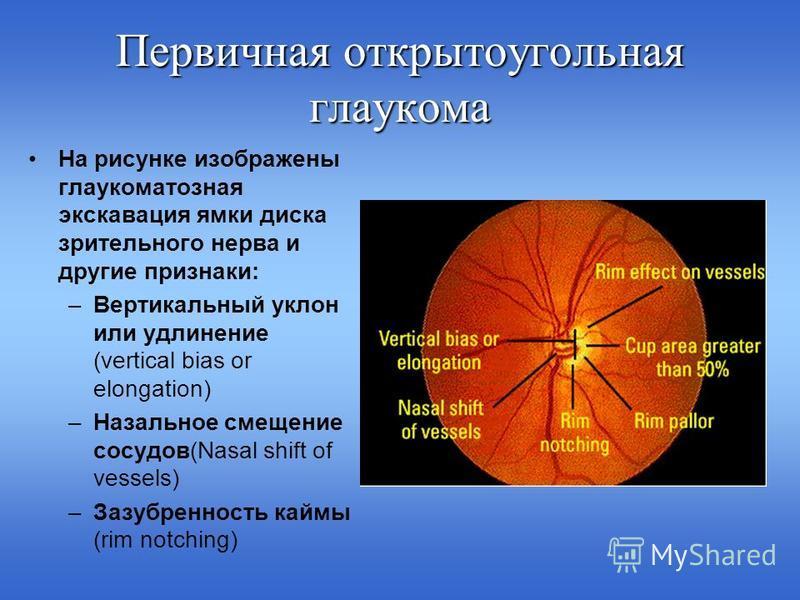 Виды женских очков для зрения