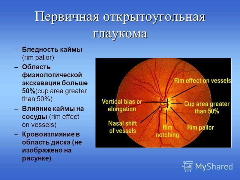 Первичная открытоугольная глаукома –Бледность каймы (rim pallor) –Область физиологической экскавации больше 50%(cup area greater than 50%) –Влияние каймы на сосуды (rim effect on vessels) –Кровоизлияние в область диска (не изображено на рисунке)