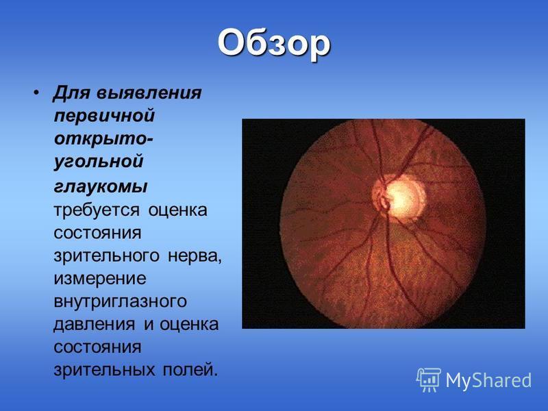 Обзор Для выявления первичной открыто- угольной глаукомы требуется оценка состояния зрительного нерва, измерение внутриглазного давления и оценка состояния зрительных полей.