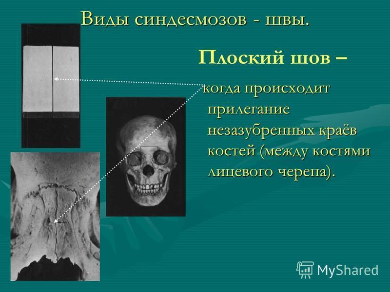 Виды синдесмозов - швы. Плоский шов – когда происходит прилегание незазубренных краёв костей (между костями лицевого черепа).