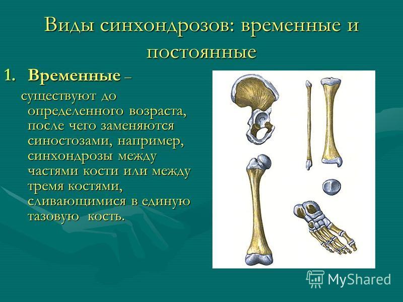 Виды синхондрозов: временные и постоянные 1. Временные – существуют до определенного возраста, после чего заменяются синостозами, например, синхондрозы между частями кости или между тремя костями, сливающимися в единую тазовую кость. существуют до оп