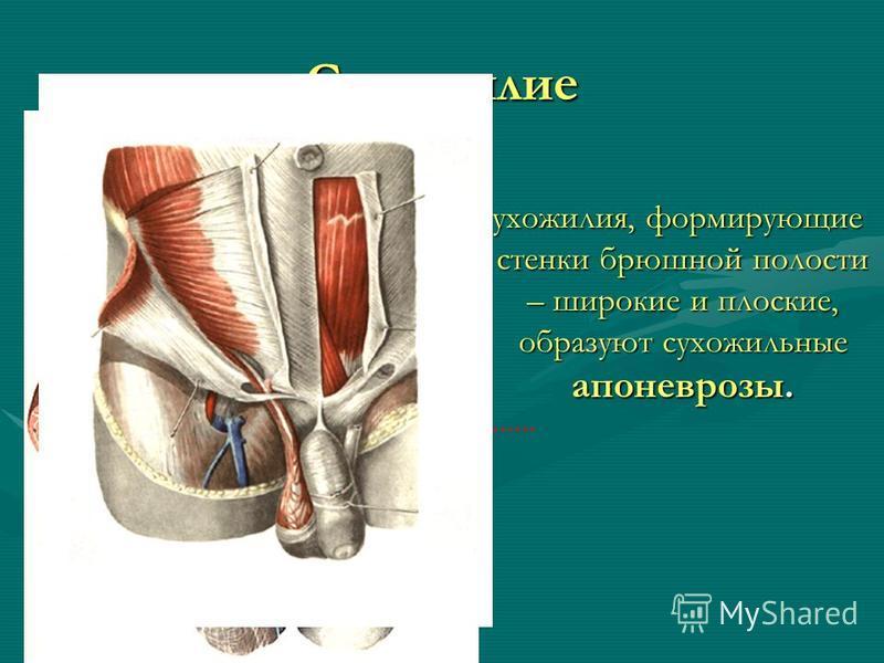 Сухожилие Сухожилия, формирующие стенки брюшной полости – широкие и плоские, образуют сухожильные апоневрозы.
