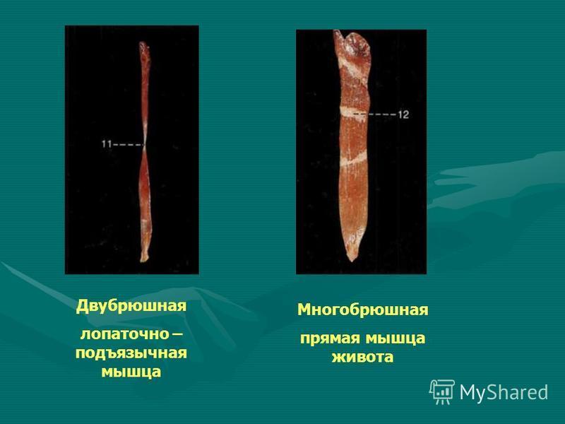 Двубрюшная лопаточно – подъязычная мышца Многобрюшная прямая мышца живота