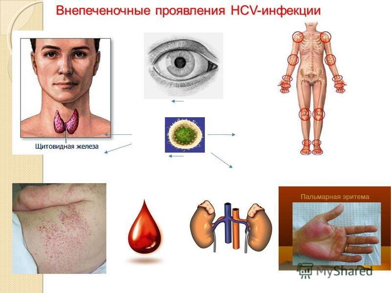 Внепеченочные проявления HCV-инфекции