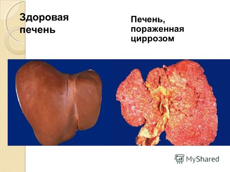 Здоровая печень Печень, пораженная циррозом