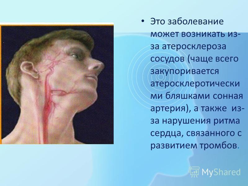 Это заболевание может возникать из- за атеросклероза сосудов (чаще всего закупоривается атеросклеротический ми бляшками сонная артерия), а также из- за нарушения ритма сердца, связанного с развитием тромбов.