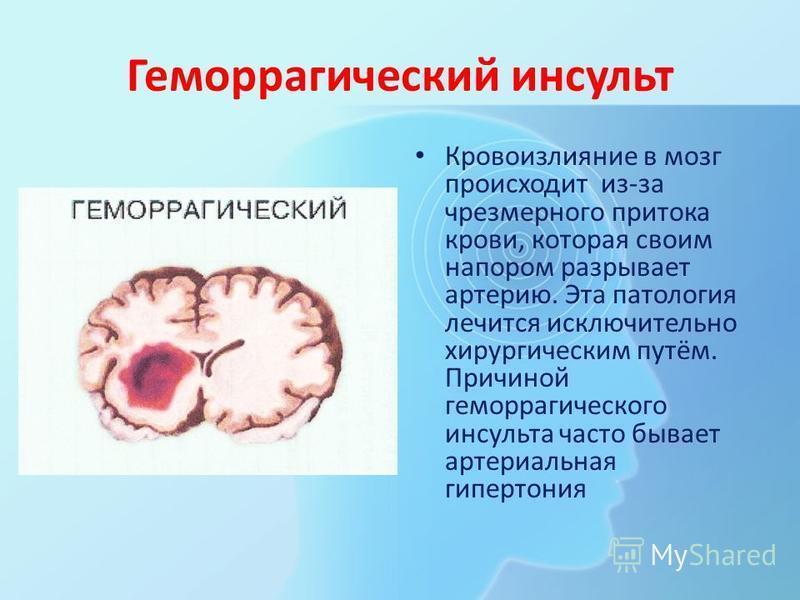 Геморрагический инсульт Кровоизлияние в мозг происходит из-за чрезмерного притока крови, которая своим напором разрывает артерию. Эта патология лечится исключительно хирургическим путём. Причиной геморрагического инсульта часто бывает артериальная ги