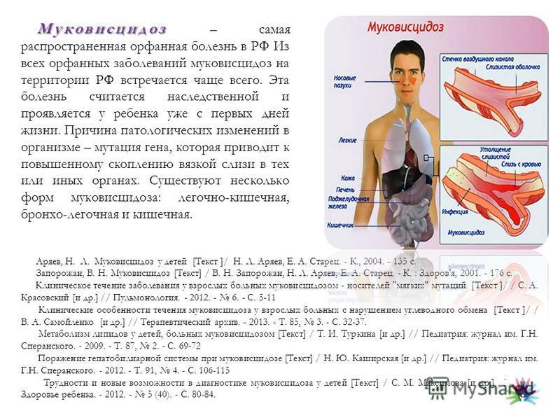 Муковисцидоз Муковисцидоз – самая распространенная орфанная болезнь в РФ Из всех орфанных заболеваний муковисцидоз на территории РФ встречается чаще всего. Эта болезнь считается наследственной и проявляется у ребенка уже с первых дней жизни. Причина