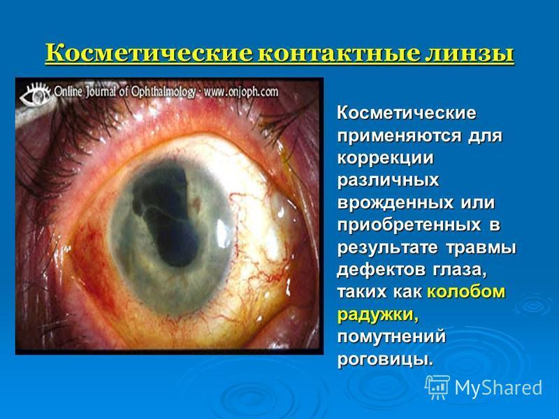 Косметические контактные линзы Косметические применяются для коррекции различных врожденных или приобретенных в результате травмы дефектов глаза, таких как колобом радужки, помутнений роговицы. Косметические применяются для коррекции различных врожде