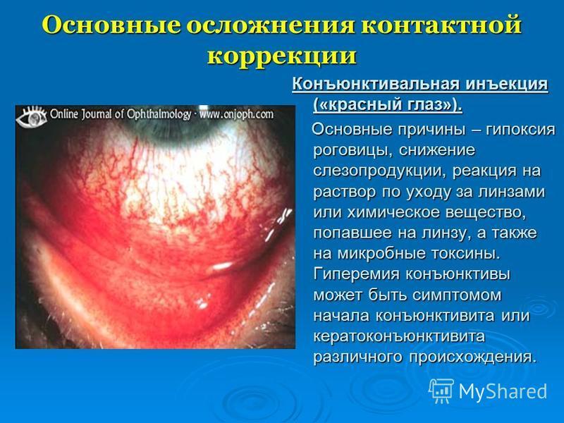 Основные осложнения контактной коррекции Конъюнктивальная инъекция («красный глаз»). Основные причины – гипоксия роговицы, снижение слезопродукции, реакция на раствор по уходу за линзами или химическое вещество, попавшее на линзу, а также на микробны