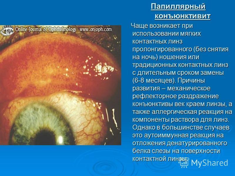 Папиллярный конъюнктивит Чаще возникает при использовании мягких контактных линз пролонгированного (без снятия на ночь) ношения или традиционных контактных линз с длительным сроком замены (6-8 месяцев). Причины развития – механическое рефлекторное ра