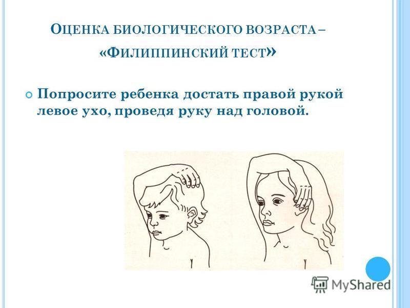 О ЦЕНКА БИОЛОГИЧЕСКОГО ВОЗРАСТА – «Ф ИЛИППИНСКИЙ ТЕСТ » Попросите ребенка достать правой рукой левое ухо, проведя руку над головой.