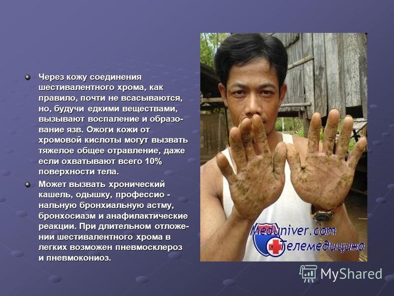 Через кожу соединения шестивалентного хрома, как правило, почти не всасываются, но, будучи едкими веществами, вызывают воспаление и образо вание язв. Ожоги кожи от хромовой кислоты могут вызвать тяжелое общее отравление, даже если охватывают всего 1
