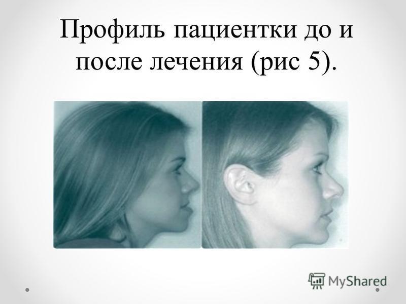 Профиль пациентки до и после лечения (рис 5).
