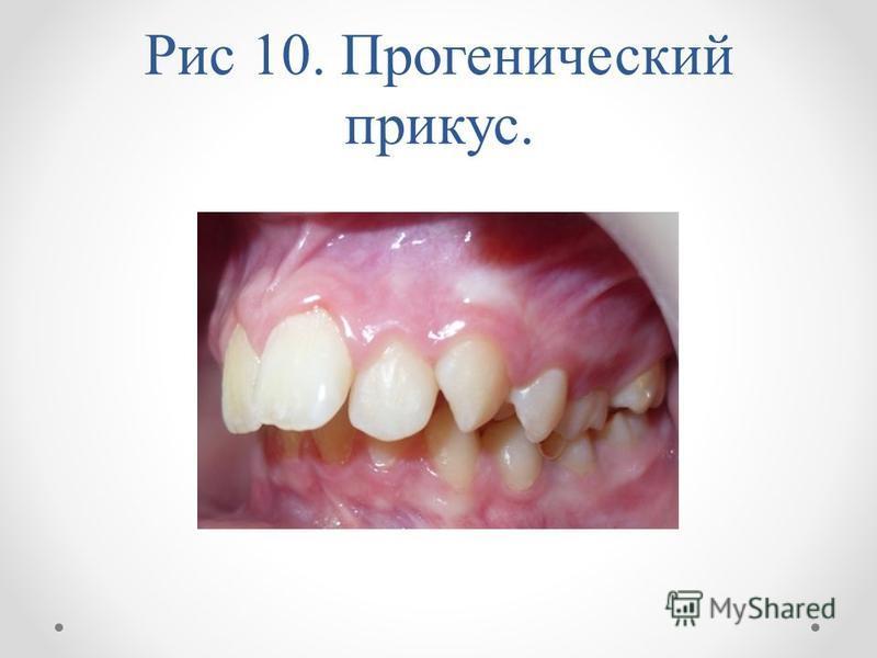 Рис 10. Прогенический прикус.