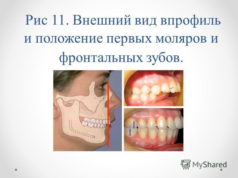 Рис 11. Внешний вид впрофиль и положение первых моляров и фронтальных зубов.